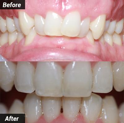 fast braces 4